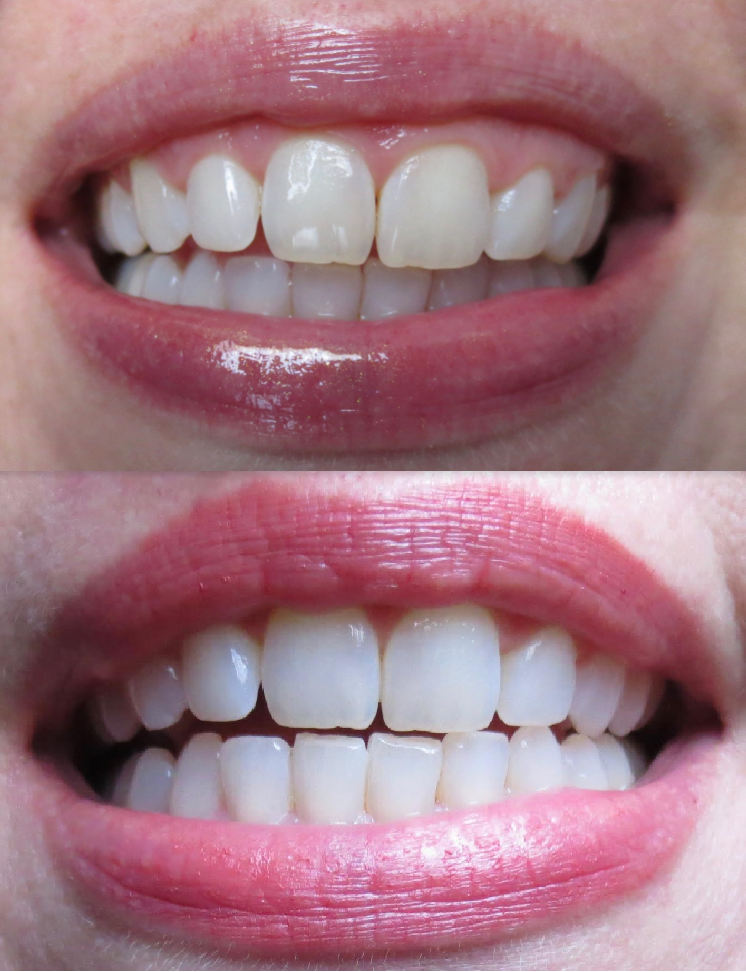 Smile Brilliant Before and After Results